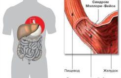 Причины разрыва пищевода, его симптомы и восстановление