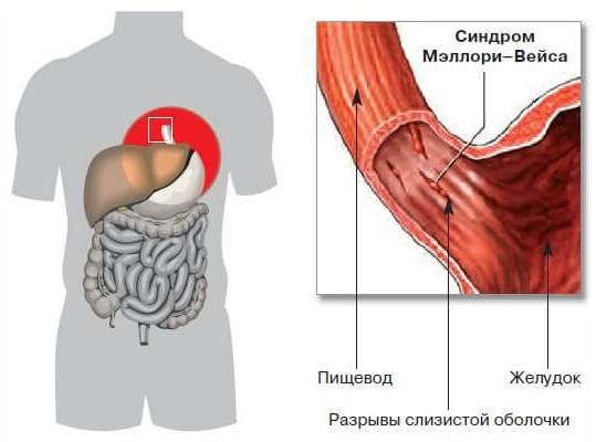 разрыв слизистой пищевода