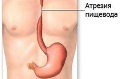 Лечение атрезии пищевода, ее причины и симптомы