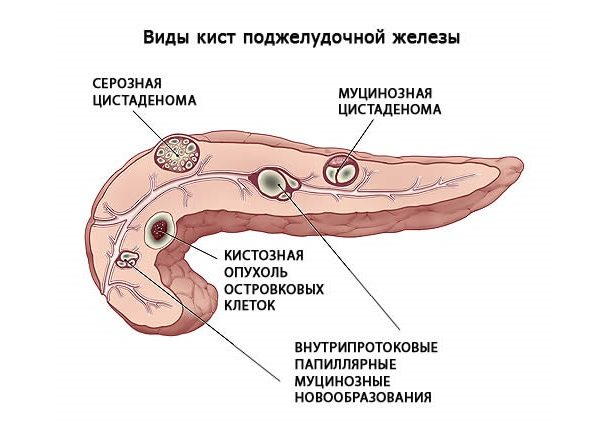 виды кист поджелудочной железы
