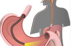 Как делается и проходит гастроскопия желудка