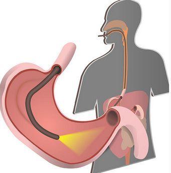 как делается гастроскопия желудка