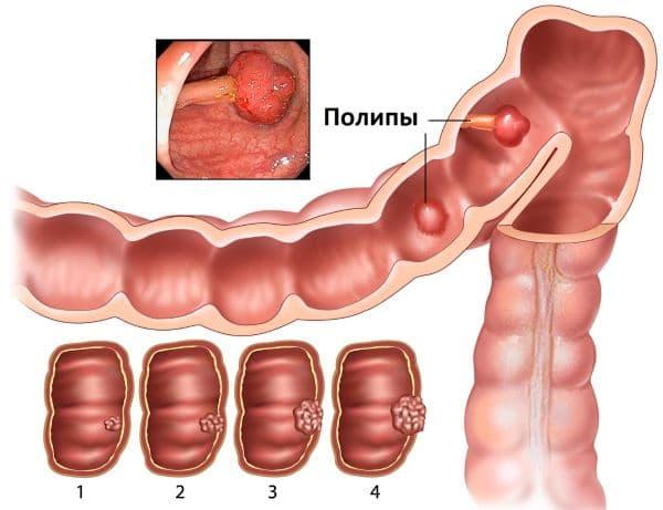 симптомы полипов в прямой кишки