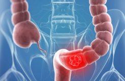 Первые симптомы рака сигмовидной кишки, его лечение