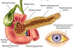 Стадии рака поджелудочной железы, его симптомы и лечение