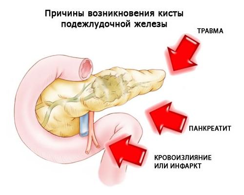 виды заболеваний поджелудочной железы