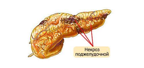 Некроз поджелудочной железы - причины, симптомы и лечение