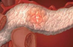 Загиб и перегиб поджелудочной железы — причины и лечение