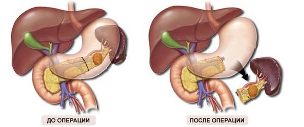 Удаление части поджелудочной железы и селезенки