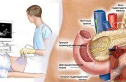 Что делать когда болит поджелудочная железа у человека