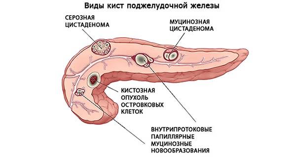 киста в поджелудочной железе