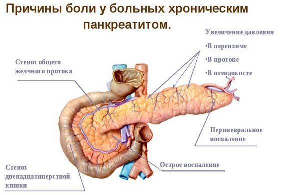 боль при хроническом панкреатите