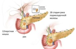 Виды болезней в поджелудочной железе, их симптомы
