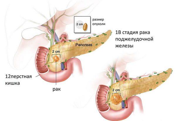 опухоль в поджелудочной железе