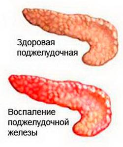 появление панкреатита