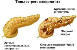Симптомы и лечение воспаления поджелудочной железы