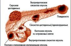 Что такое псевдокиста поджелудочной железы, ее лечение
