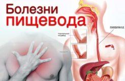 Основные болезни пищевода, их симптомы и лечение