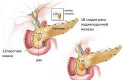 Причины возникновения рака поджелудочной железы