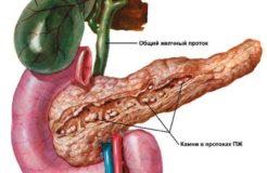Почему болит поджелудочная железа, симптомы и причины заболеваний