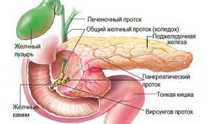камни в поджелудочной железе