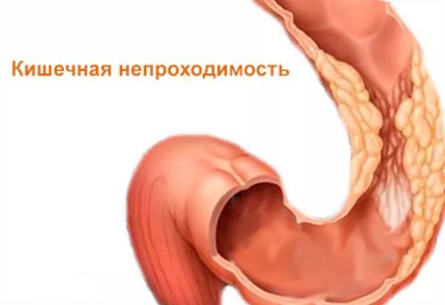 сужение кишечника