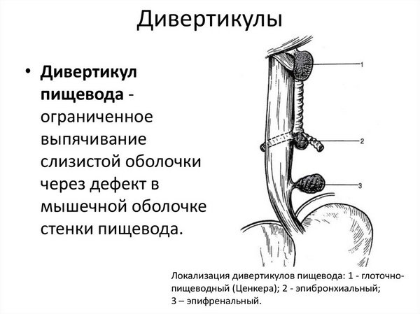 Дивертикул пищевода