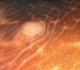 Симптомы меланоза кишечника, ее причины и лечение