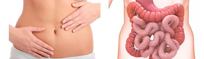 Меланоз кишечника