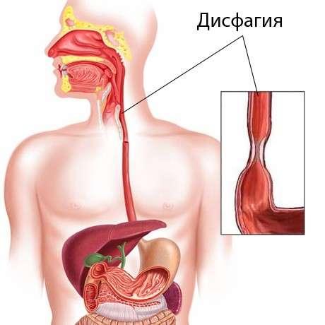 Дисфагия пищевода