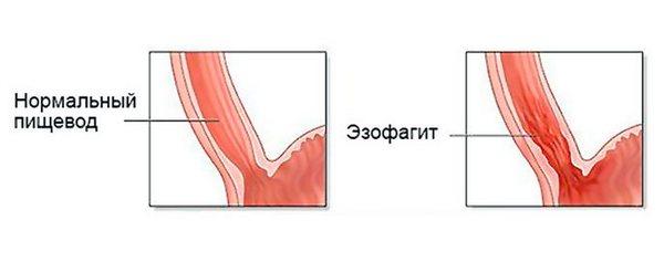 эзофагоспазм пищевода