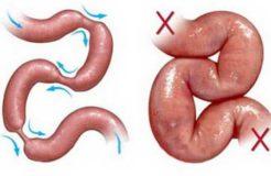Врожденная и приобретенная кишечная непроходимость у детей