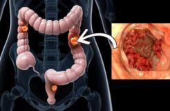 Признаки рака толстого кишечника, симптомы и лечение