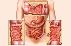 Симптомы метастаз при раке кишечника, их лечение