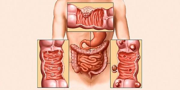 виды опухолей в кишечнике