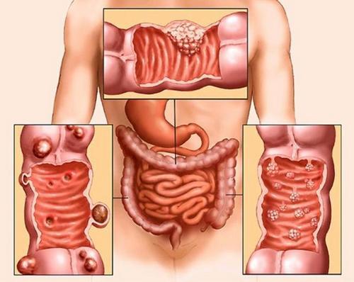 Как правило, указанный тип онкологии возникает у людей, злоупотреблявших алкогольными напитками, и на фоне длительно развивающегося цирроза печени.