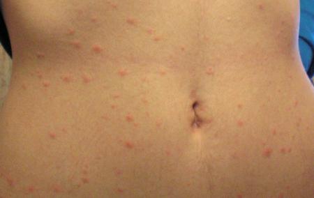 аллергическая сыпь на животе