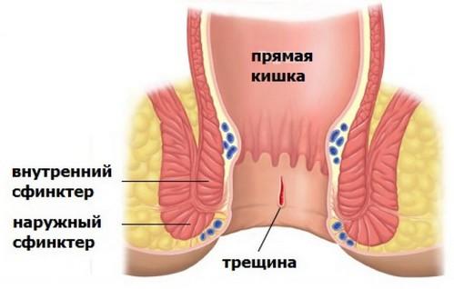 внутренний сфинктер