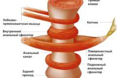 Что такое сфинктерит прямой кишки, его лечение